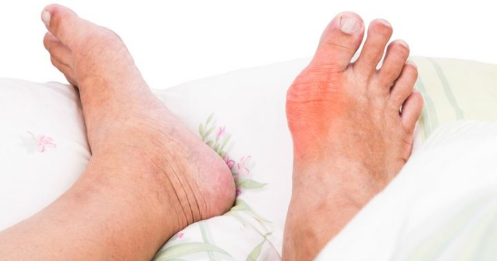 The Ketogenic Diet is a Natural Treatment for the Symptoms of Gout | Covenant Natural Health Care